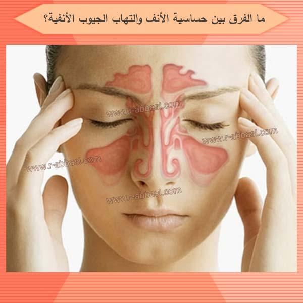 ما الفرق بين حساسية الأنف والتهاب الجيوب الأنفية؟