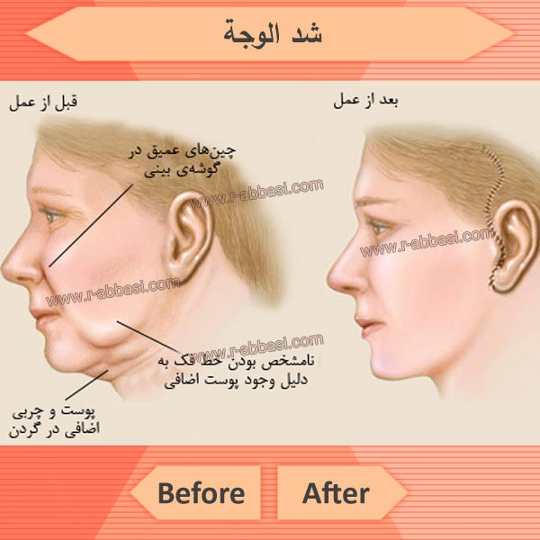 أنواع عمليات شد الوجه وفوائد البشرة والآثار الجانبية والمخاطر
