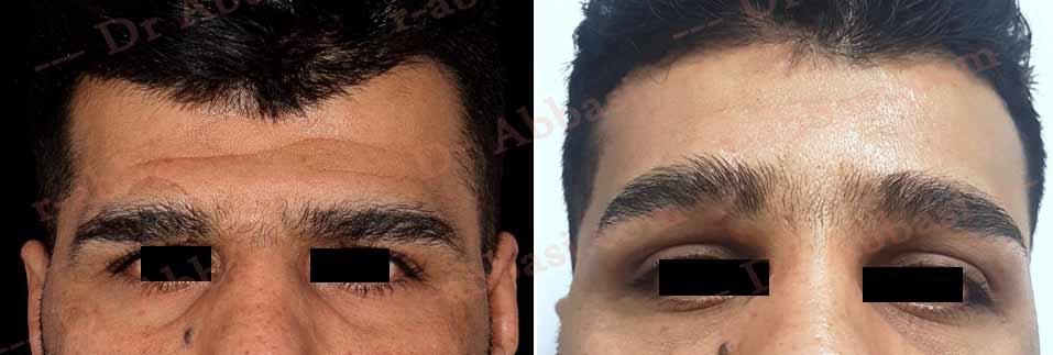 جوانسازی صورت و کشیدن پوست و ابرو