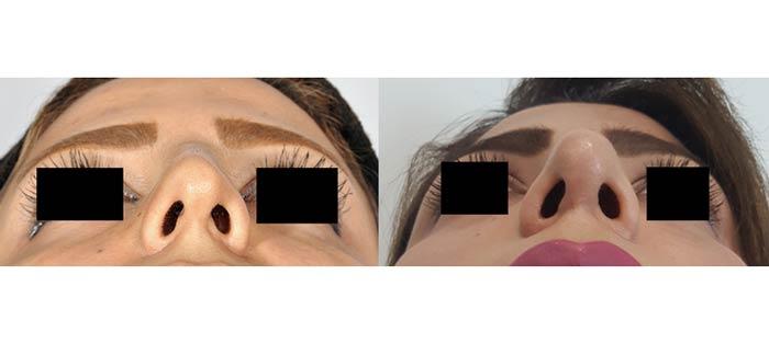 جراحی زیبایی بینی(رینوپلاستی)