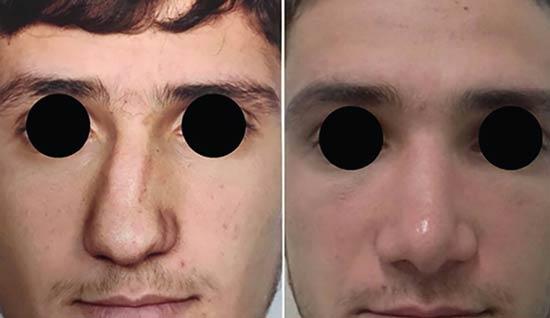 جراحی و اصلاح بینی کج