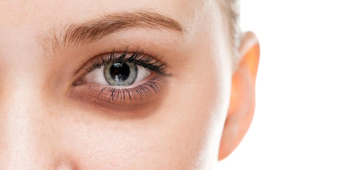 روش درمان قطعی پف دور چشم با مزوتراپی