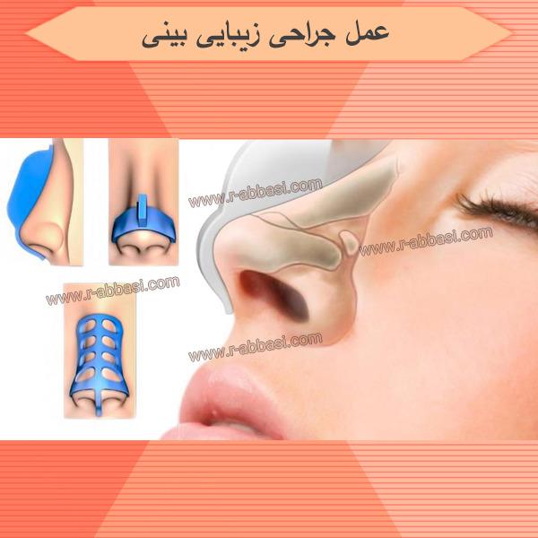 تومورهای حفره بینی