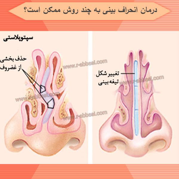 درمان انحراف بینی به چند روش ممکن است؟